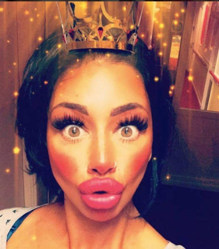 Девушка потратила почти 2 тысячи фунтов на подкачку губ, но все еще не считает их большими