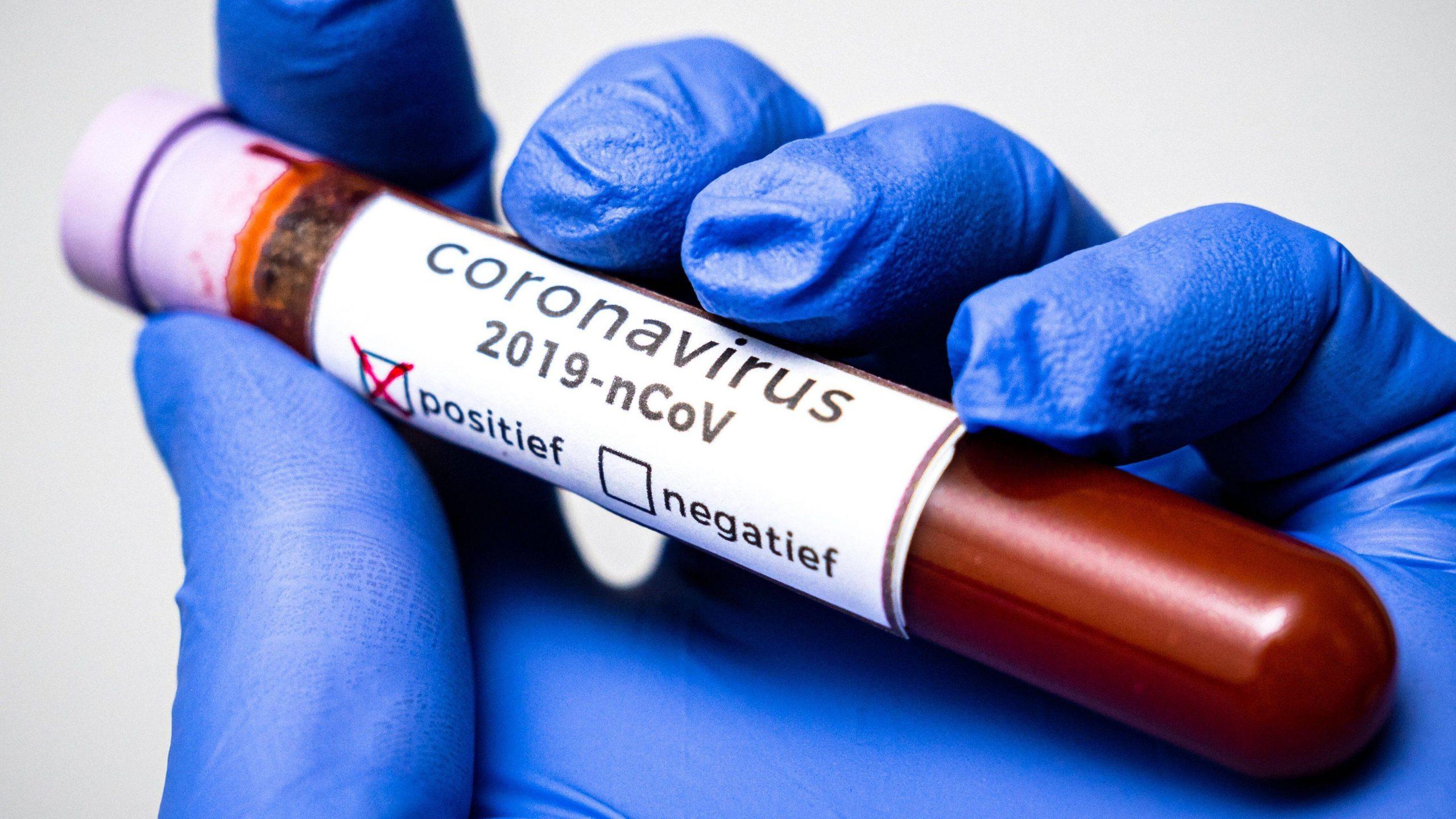 В Беларуси с начала пандемии — 235 859 человек с COVID-19