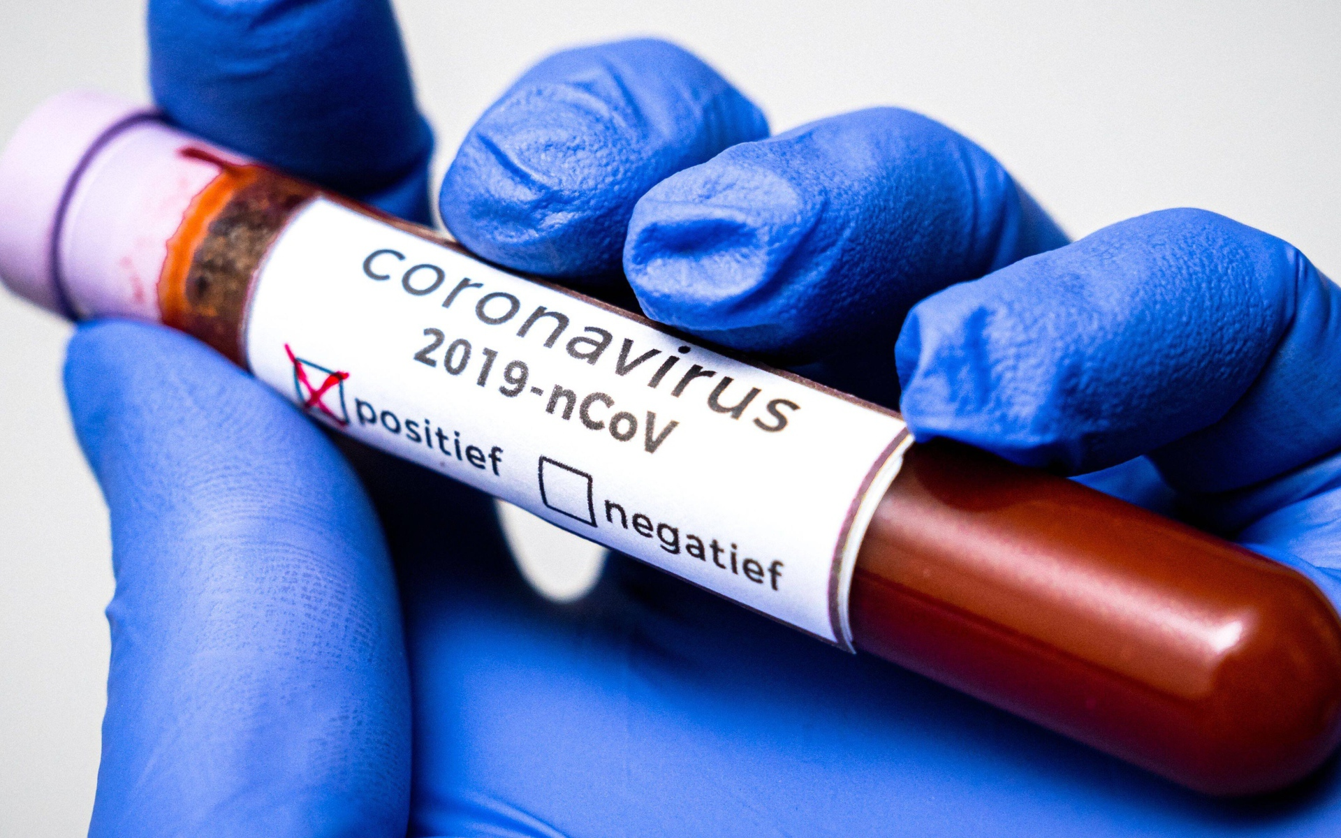 Новые данные по COVID-19: 995 случаев заражения за сутки, около 11,5% тестов показали наличие вируса